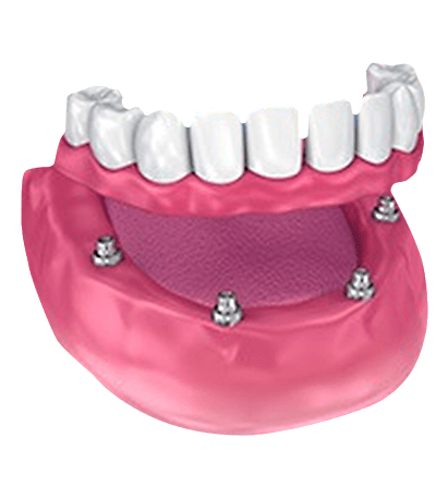 Picture of All on 4 Dental Implant
